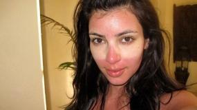 راهکارهای رهایی از آفتاب سوختگی