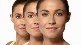 روشهای سریع درمان جوشهای صورت