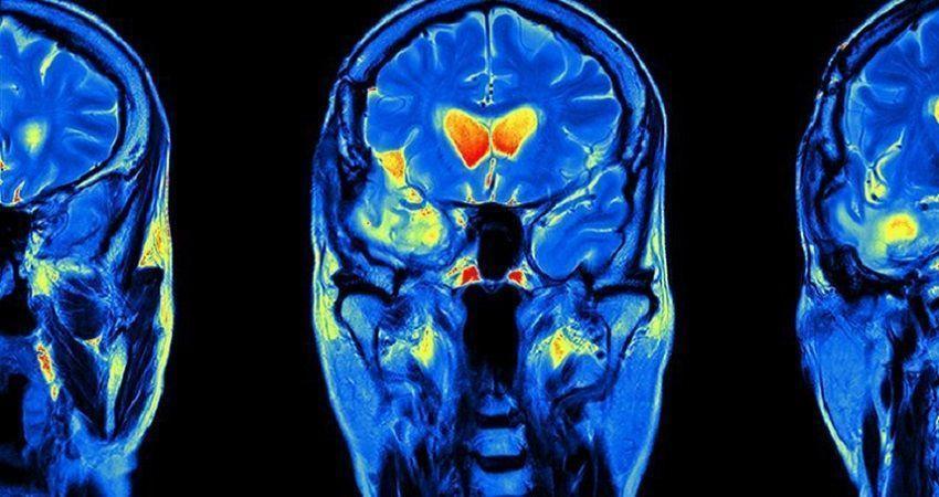 تاثیر داروی مالاریا بر سرطان مغز