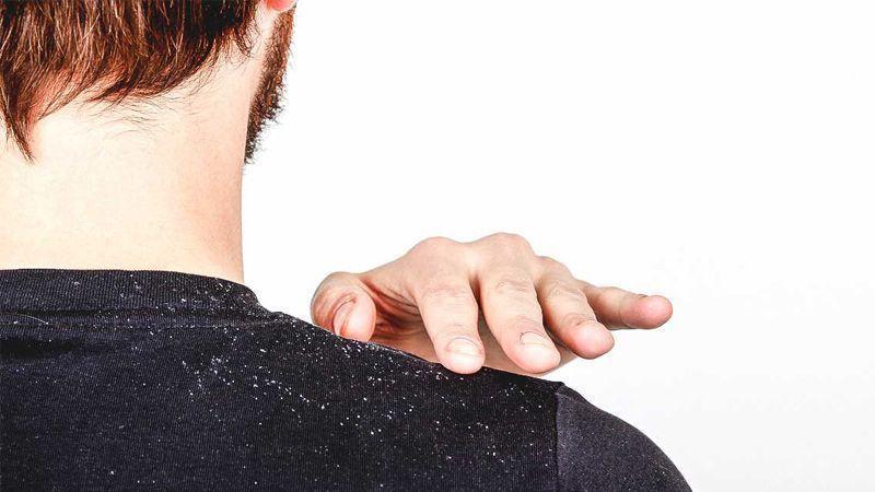 درمان ریز مو و شوره سر