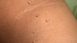 رفع منگوله های پوستی
