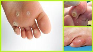 درمان میخچه های پا