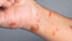 انواع سوختگی پوست و روشهای درمان