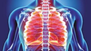 برونشیت، علائم، عوارض و راه های درمان