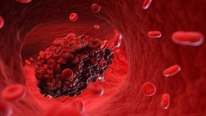 لخته های خون
